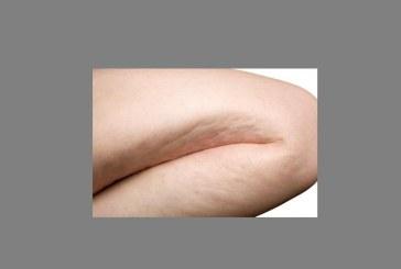 Lo iodio e la cellulite