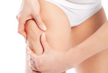Cosa è la cellulite