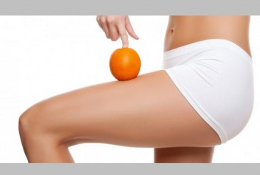 La pelle a buccia d'arancia
