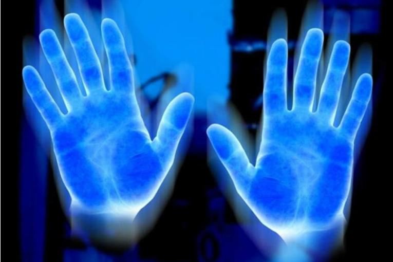 Artrite Reumatoide e Pranoterapia