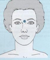 sindrome pre mestruale 1