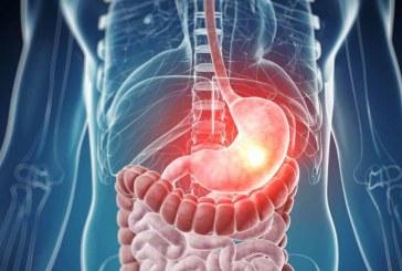 Come assumere i rimedi per lo stomaco